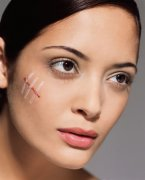 <b>Protective measures for facial scars</b>
