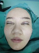 How to reduce the double eyelid scar?